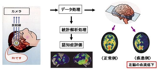 脳血流シンチグラフィー