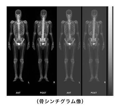 骨シンチグラム像