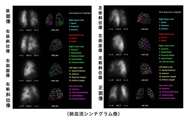 肺血流シンチグラフィー像